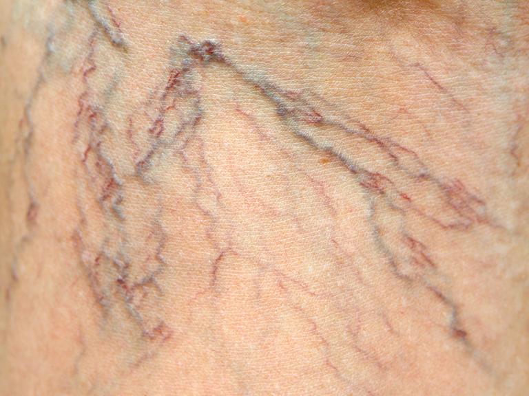 why spider veins
